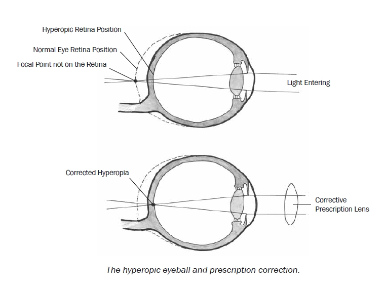 Hyperopic Eyeball