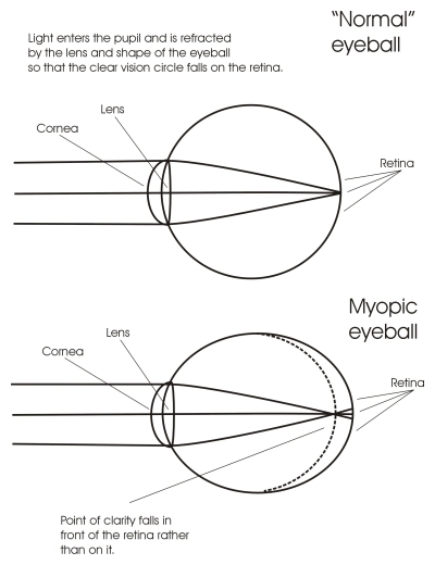 how to tell if you are short sighted